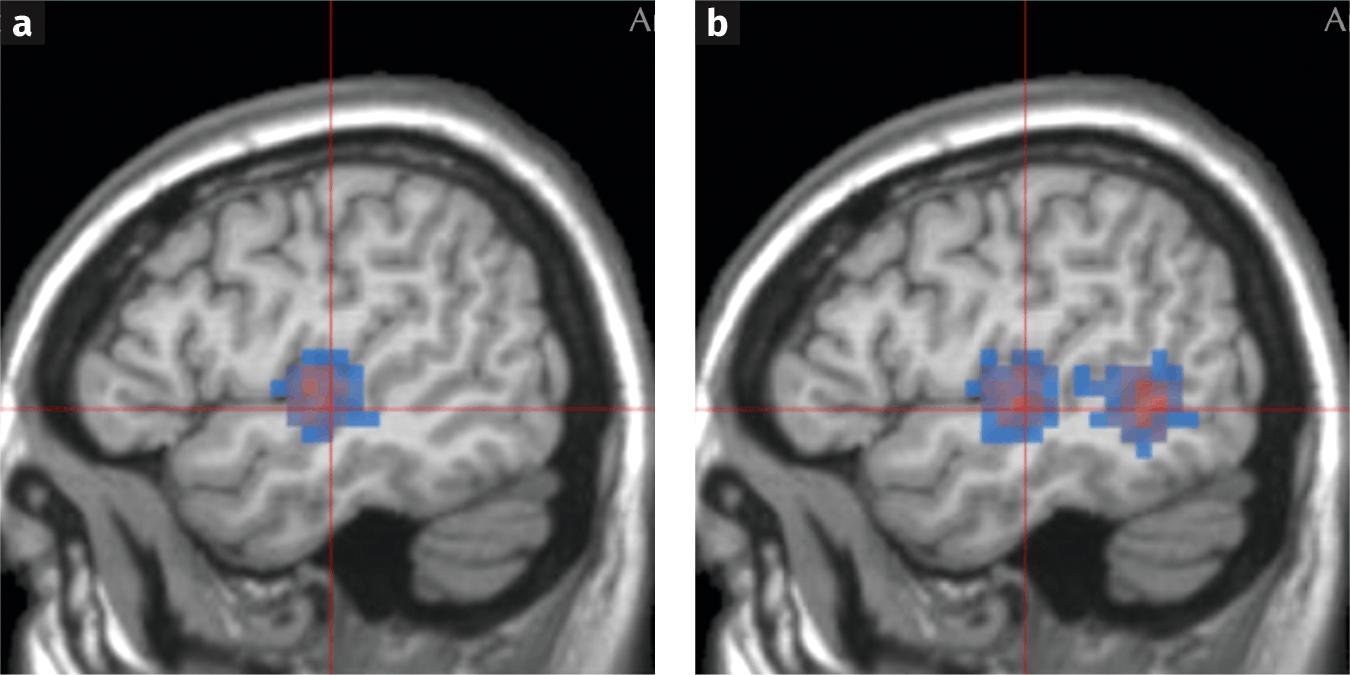 Cerveaux des individus écoutant de la musique avec et sans paroles