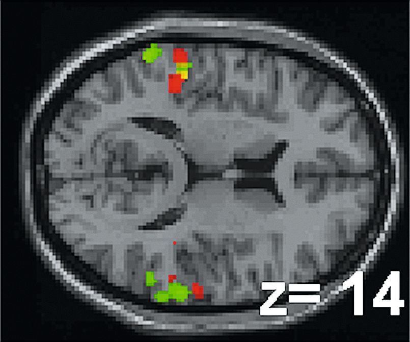 IRM fonctionnelles d'individus écoutant un son ou le silence