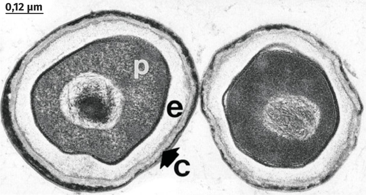 Photographie en MET de deux spores de Bacillus subtilis