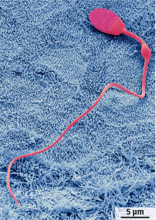 Spermatozoïde humain observé en microscopie électronique à balayage (image colorisée).