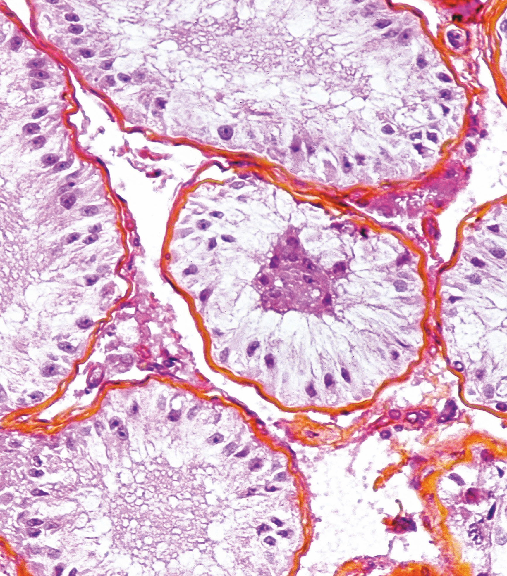 Observation chez une souris XX transgénique possédant le gène SrY.