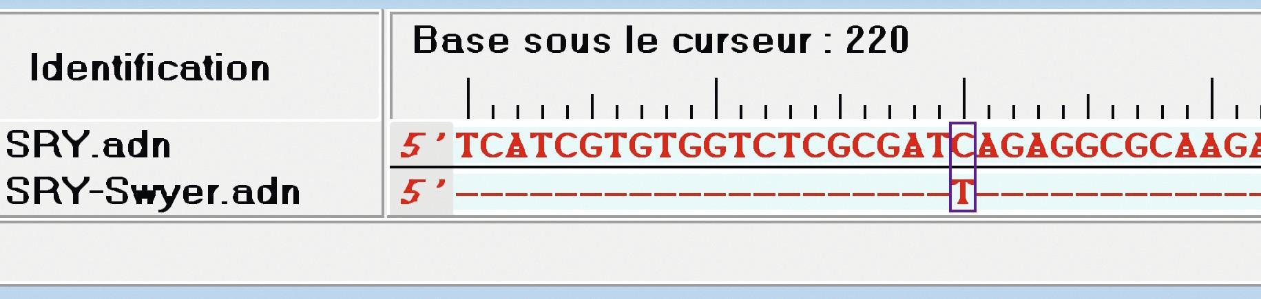 Étude du syndrome de Swyer avec un logiciel de comparaison de séquences.