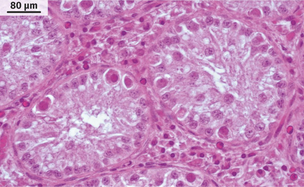 Coupe transversale d'un testicule cryptorchide humain (MO).