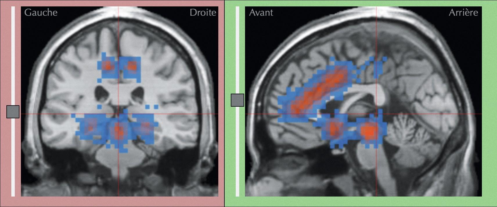 Cerveau d'un sujet recevant des caresses sexuelles observé en IRMf.
