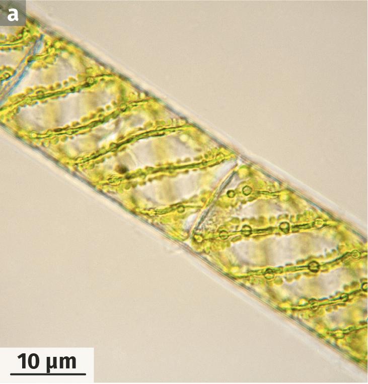 Photographie d'un filament de spirogyre