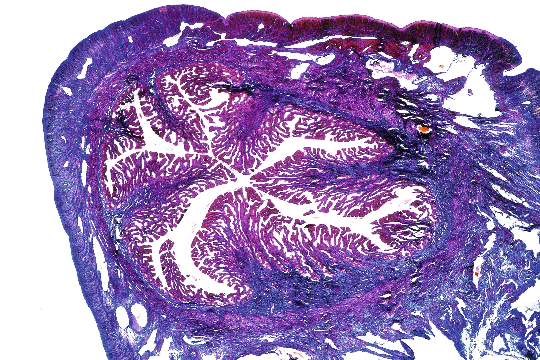Effets du RU 486 sur la muqueuse utérine de trois lots de lapines impubères.