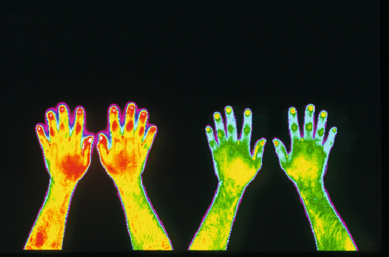Imagerie infrarouge des mains d'un fumeur