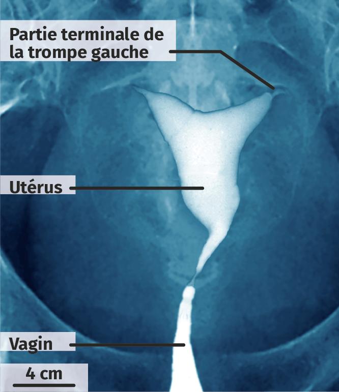 Hystérosalpingographie de l'utérus de Mme B.