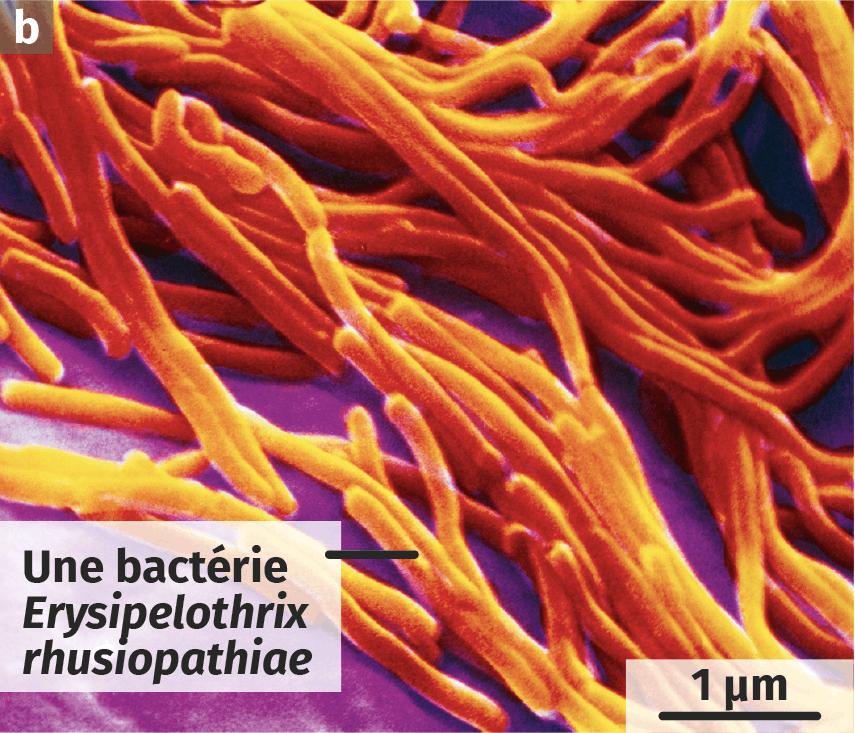 La bactérie Erysipelothrix rhusiopathiae, Observation récente au microscope électronique à balayage (image colorisée).